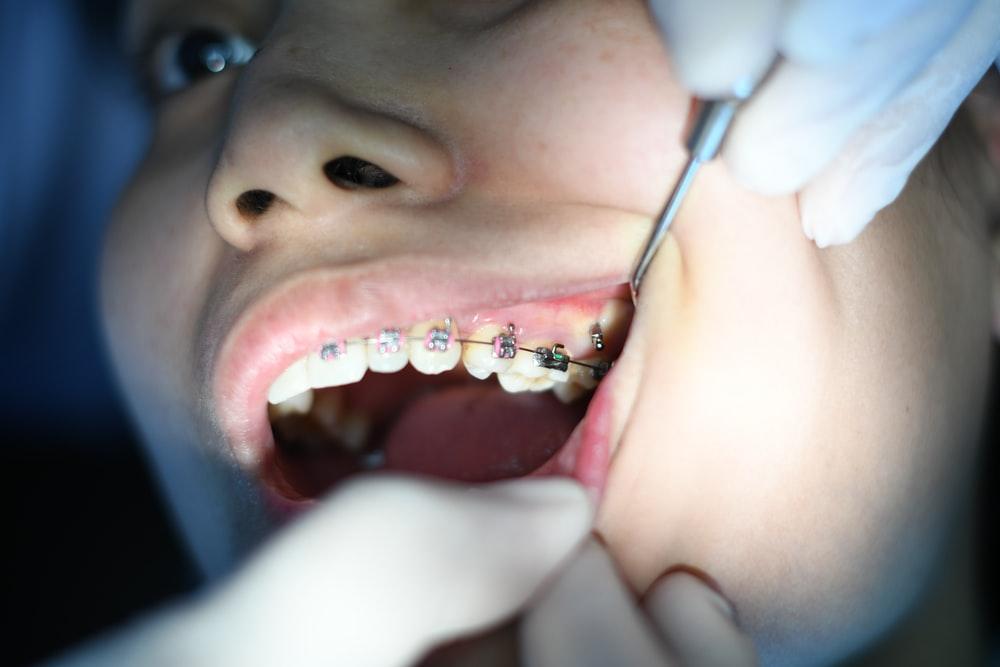 Pravidelne navstevy dentalni hygieny Praha jsou velmi dulezite